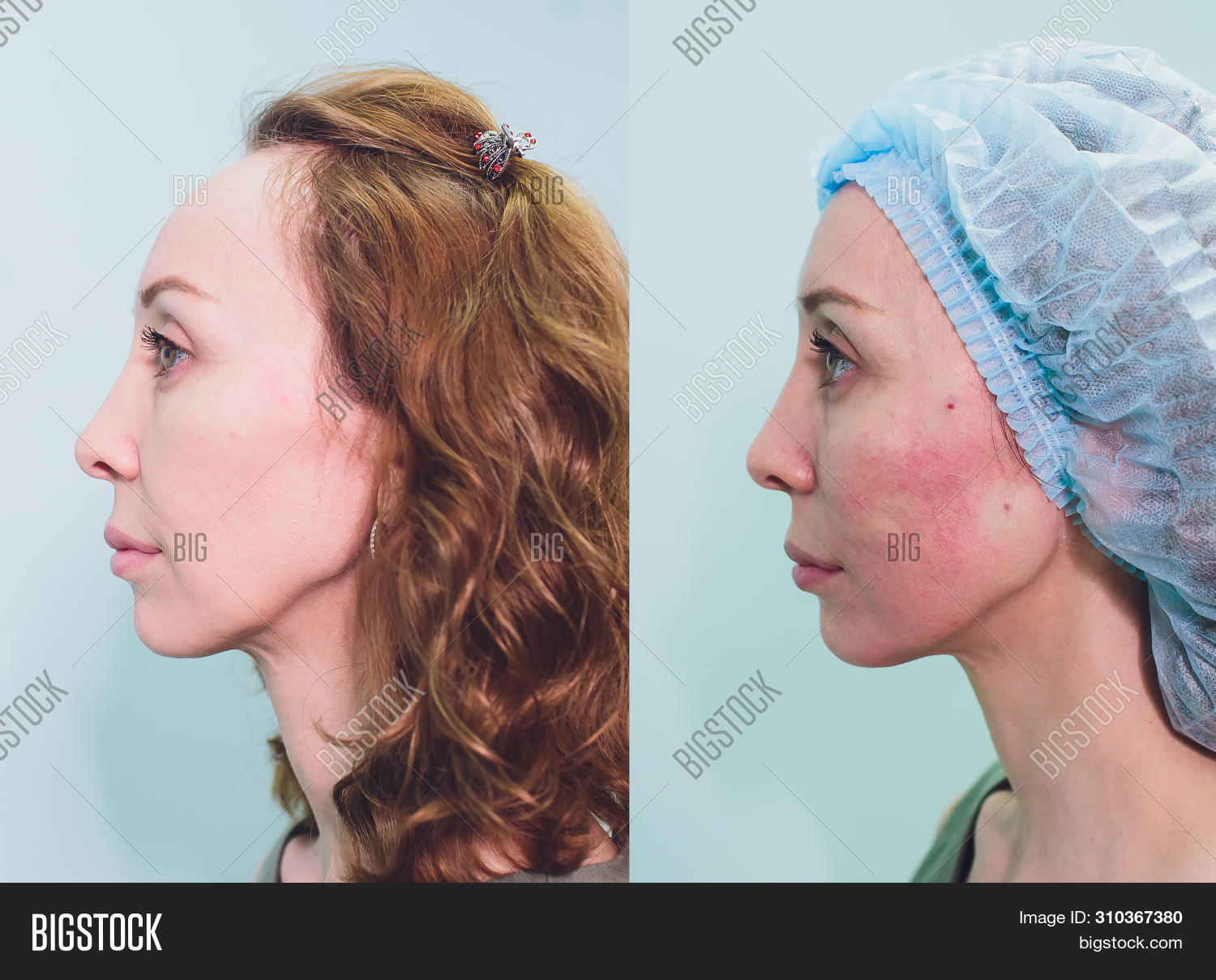 adult,aesthetic,aged,aging,anti,anti-aging,beautician,beautiful,beauty,care,clinic,close-up,cosmetic,cosmetology,doctor,excess,face,facial,female,filler,girl,gold,health,healthy,injection,lifting,medic,medical,medicine,mesothreads,middle-aged,needle,operation,patient,pdo,plastic,procedure,professional,regenerative,shape,skin,specialist,surgery,therapy,thread,threadlift,treatment,white,woman,young