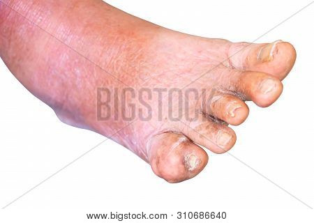 gout foot little finger in aged people Close up On white background stock photo