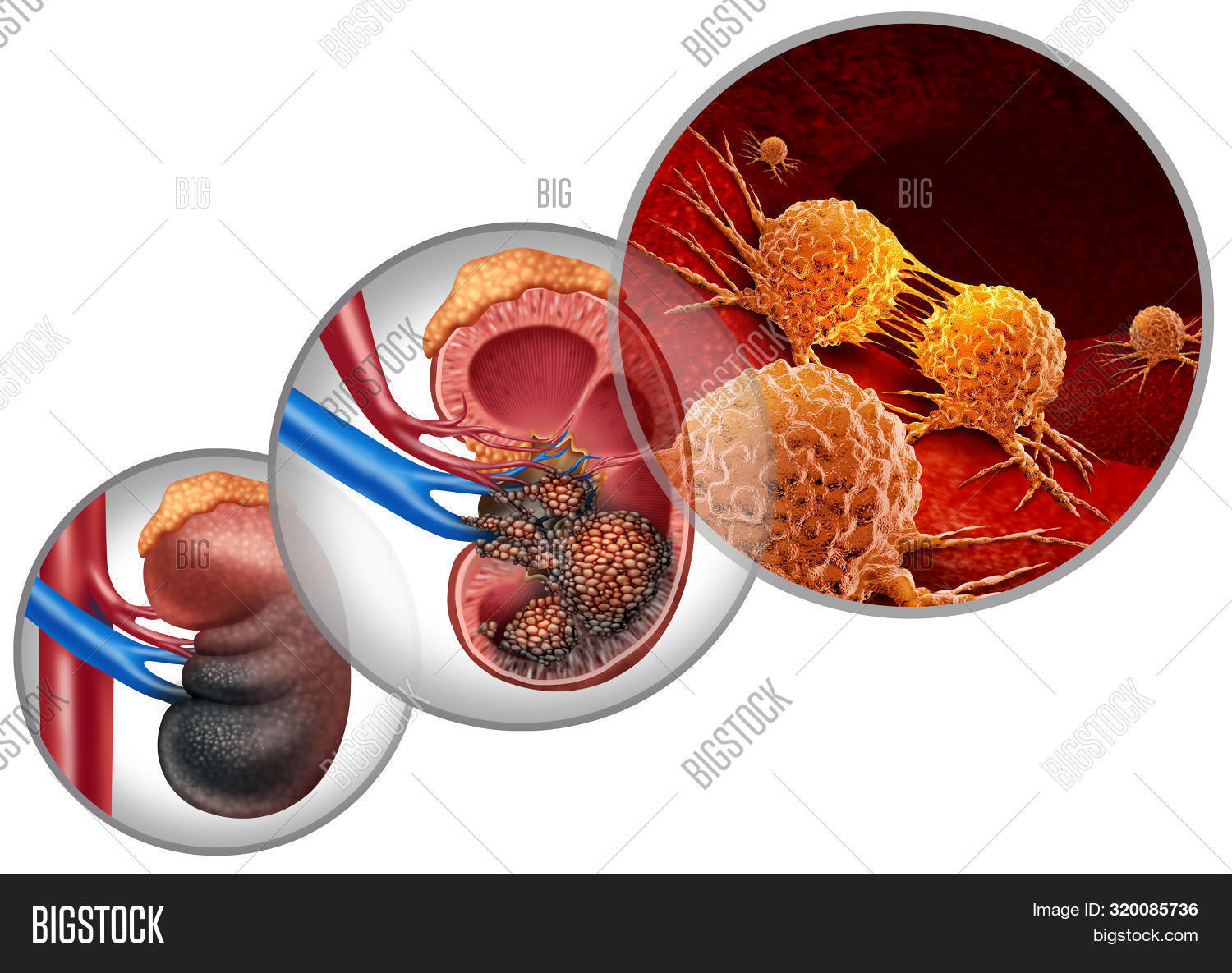 Kidney Cancer Disease Medical Concept As Malignant Cells In A Human Body Attacking The Urinary Syste