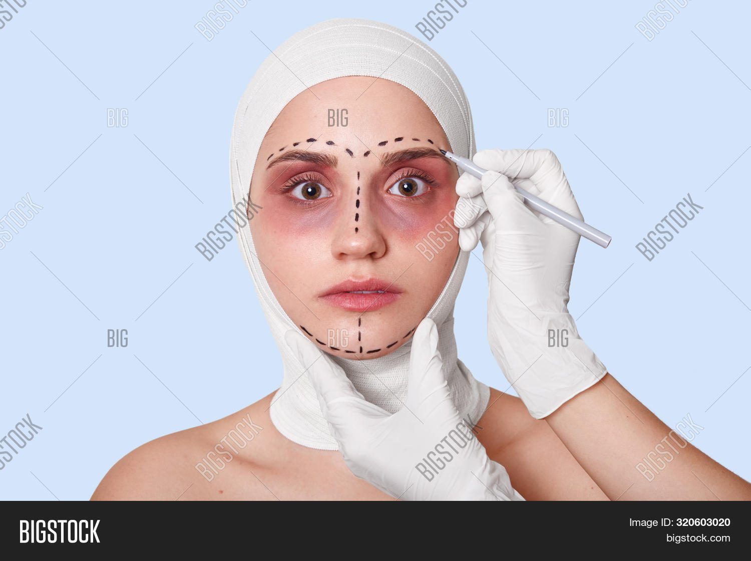 Image Of Woman Wants To Have Browlifting, Prepares For Beauty Treatments Or Facelifting, Has Bruises