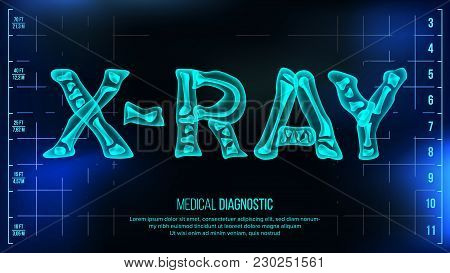 X-ray Banner Vector. Medical Background. Transparent Roentgen X-Ray Text With Bones. Radiology 3D Scan. Medical Health Typography. Futuristic Illustration stock photo
