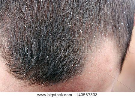 Dandruff in the hair. Symptoms of skin disease stock photo