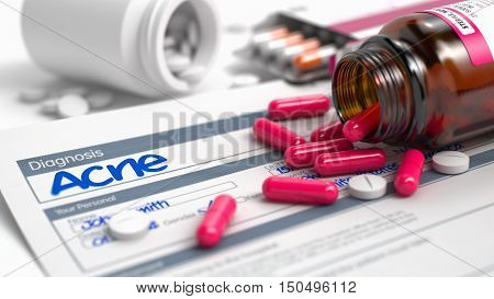 Acne Phrase in Disease Extract. Close View of Medical Concept. Handwritten Diagnosis Acne in the Anamnesis. Medicaments Composition of Red Pills, Blister of Pills and Bottle of Tablets. 3D. stock photo