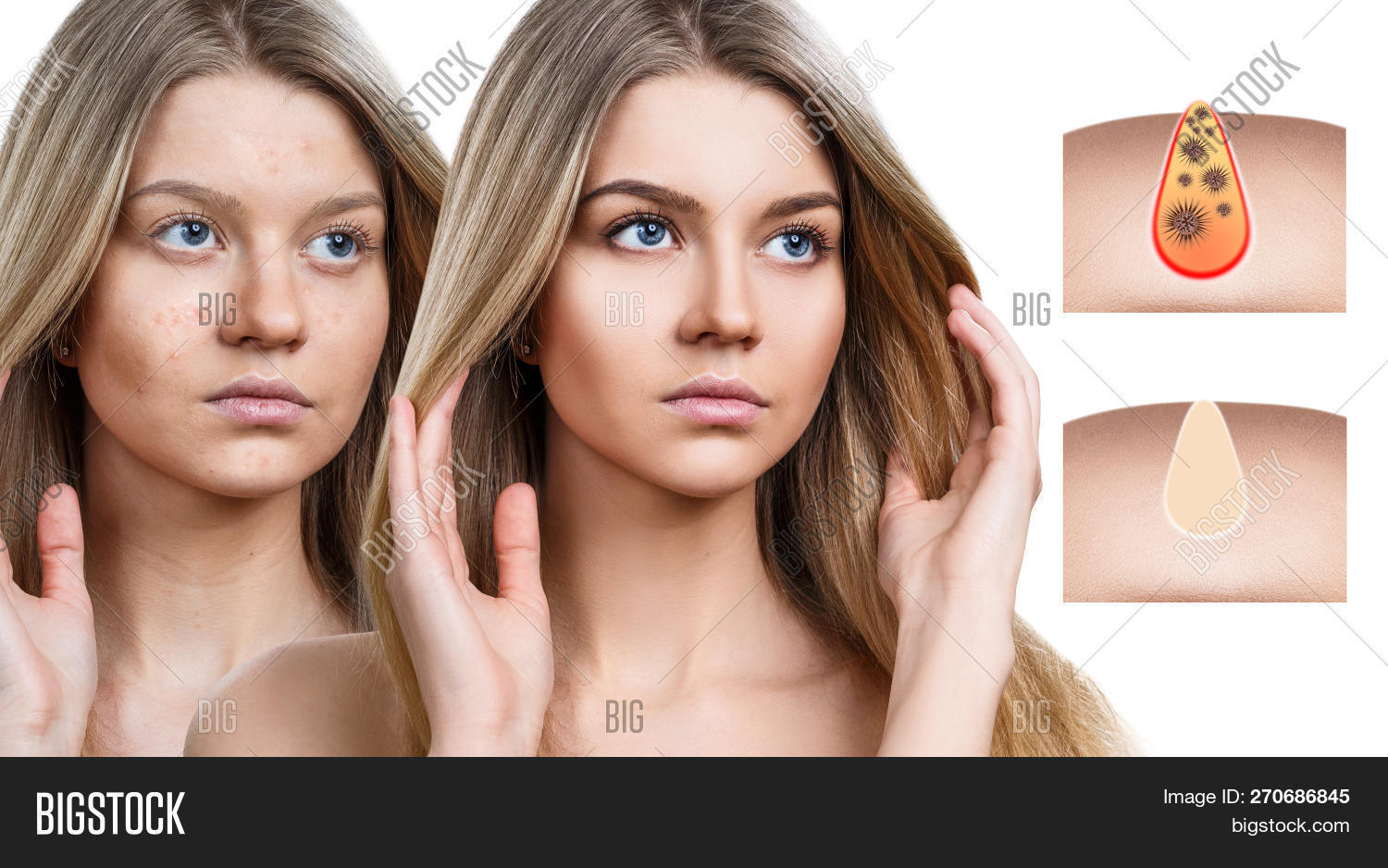 Beautiful Woman Shows How To Pollute And Clean The Pores On