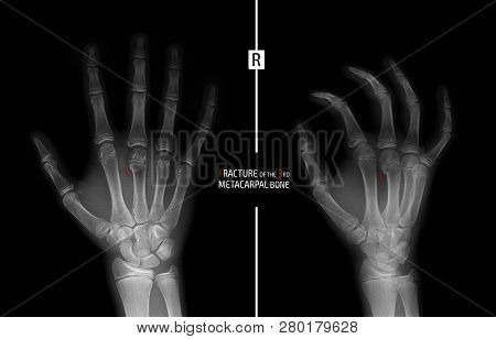X-ray of the hand. Fracture of the 3rd metacarpal bone the child. Marker. stock photo