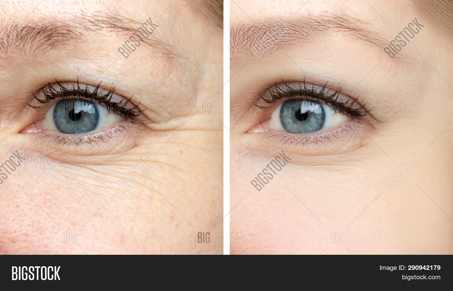 acid,adult,age,aging,anti,antiaging,beautician,beauty,biorevitalization,blepharoplasty,care,caucasian,collagen,correction,cosmetic,cosmetology,crease,dermatology,difference,effect,eye,face,facial,female,filler,freckles,health,lift,lifting,patient,procedure,regeneration,rejuvenation,removal,results,revitalization,skin,surgeon,surgery,therapy,treatment,woman,wrinkle,wrinkled,youth
