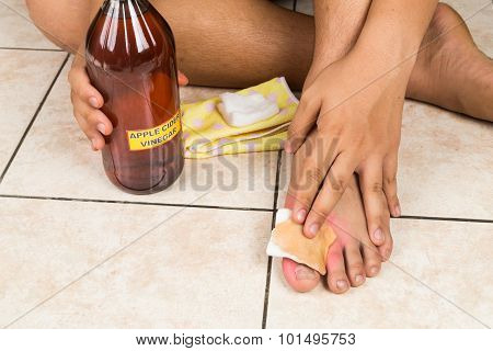 Apple cider vinegar effective natural remedy for skin itch fungal infection warts bruises and burns stock photo