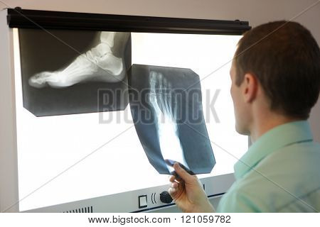 specialist  watching images of foot at  x-ray film viewer stock photo