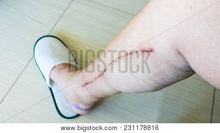 Selective focus of old male human leg with scar from cardiac surgery of coronary artery disease stock photo