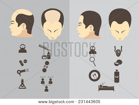 Male hair loss stages set. Man before and after hair treatment and hair transplantation. Male pattern baldness. Transplantation of hair. illustration. stock photo