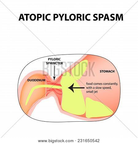 spasms of the pylorus. Pylorospasm. atonic. Pyloric sphincter of the stomach. Infographics. Vector image on isolated background. stock photo