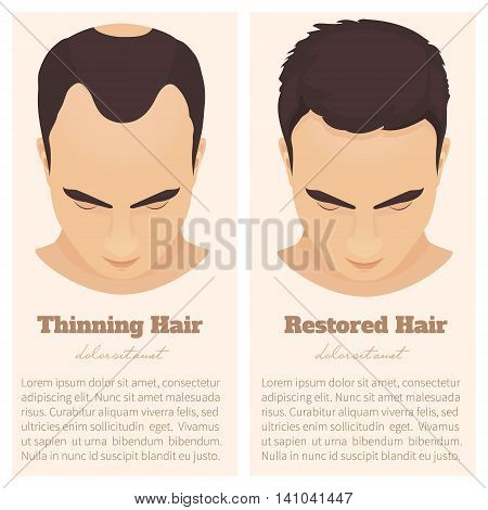 Man with thinning and restored hair. Hair condition before and after hair treatment and hair transplantation. Male pattern hair loss set. Hair care concept. Isolated vector illustration. stock photo