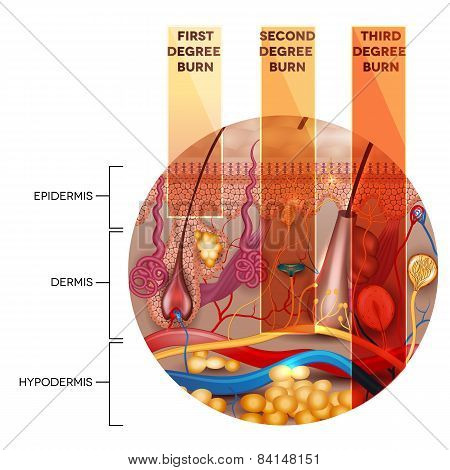 Round shape skin anatomy and skin burn classification stages on a white background stock photo
