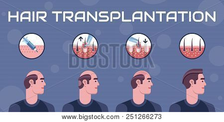Hair transplantation surgery steps infographics. Patient before and after the procedure. Male hair loss treatment with FUT, FUE method. Alopecia medical design for clinics and diagnostic centers. stock photo