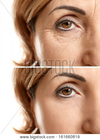 Mature woman face before and after cosmetic procedure. Plastic surgery concept. stock photo