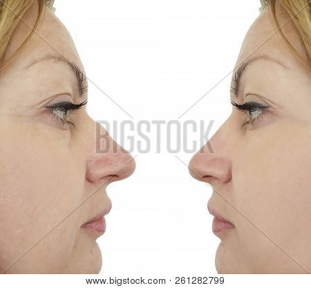 female nose hump correction before and after procedures stock photo