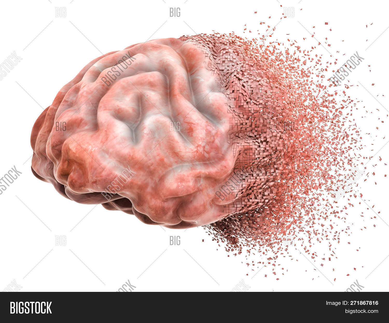 3d,Alzheimer,Parkinson's,amnesia,background,behavior,bipolar,brain,brainstorming,cancer,chronic,concept,concussion,damage,degenerative,dementia,destruction,disease,disorder,domination,forget,head,health,illness,illustration,injury,intelligence,isolated,loss,medical,medicine,memory,mental,mentally,mind,neurology,neuropathology,pain,problem,rendering,schizophrenia,thinking,trauma,traumatic,white