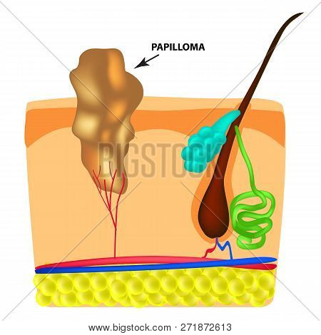 The structure of the papilloma. The structure of the skin. Infographics. Vector illustration on isolated background. stock photo