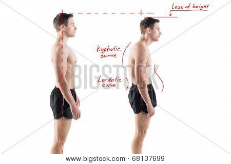 Man with impaired posture position defect scoliosis and ideal bearing. stock photo