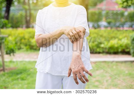 Senior asian woman with rash or papule and scratchon her arm from allergies,Health allergy skin care problem stock photo