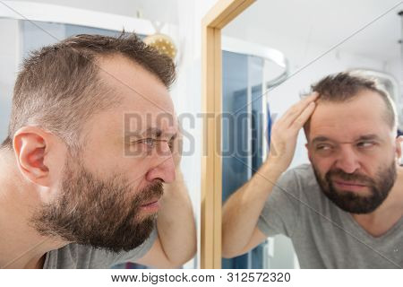 Worried adult man looking in bathroom mirror at his decreasing hairline thinking about hair care treatment stock photo