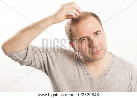 Baldness Alopecia man face hair loss haircare white background stock photo