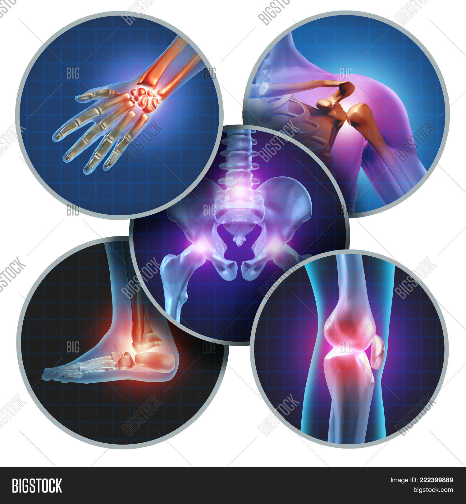 3D,ache,anatomicalcartilage,anatomy,arthritis,body,bone,elements,femur,foot,hand,hurt,illness,illustration,inflammation,injury,joint,knee,ligament,medical,medicinal,medicine,muscle,osteoporosis,pain,painful,patella,physical,shoulder,skeleton,spine,suffering,therapy,x-ray