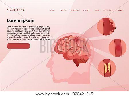 Stroke disease, ischemic, atherosclerosis and hemorrhagic. Scientific medical illustration of human brain stroke illustration. illustration, vector. stock photo