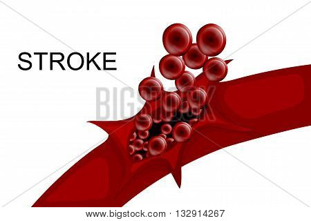 illustration of a rupture of the vessel. hemorrhagic stroke. insult stock photo