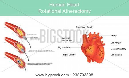 Atherectomy is a procedure which is performed to remove atherosclerotic plaque from diseased arteries. Atherosclerotic plaques are localized in either coronary. Illustration. stock photo