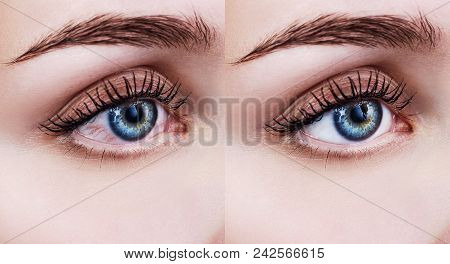Red eye of woman before and after eyewash treatment. Itchy and irritated eye. stock photo