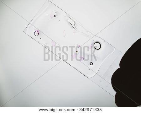 Slices of the tumor under glass. Histological examination of tumor cells for the presence of cancer. Samples of tumor cells under the sleek against the background of the lamp. stock photo