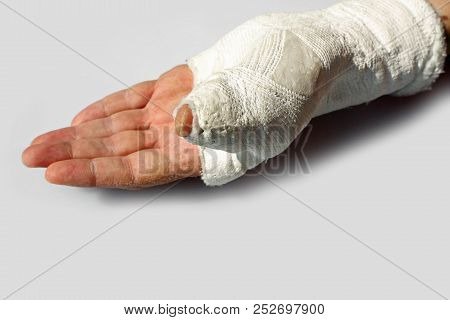 fractured hand of a man  with the orthopedic cast after the accident on white background stock photo