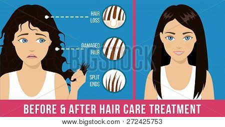 Hair care. Common problems - split ends, damaged hair, loss. Before and after hair care treatment. Vector stock photo
