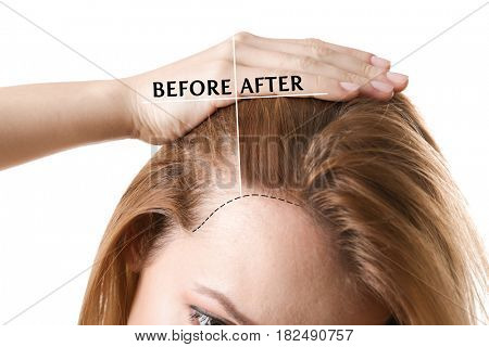 Woman before and after hair loss treatment on white background stock photo