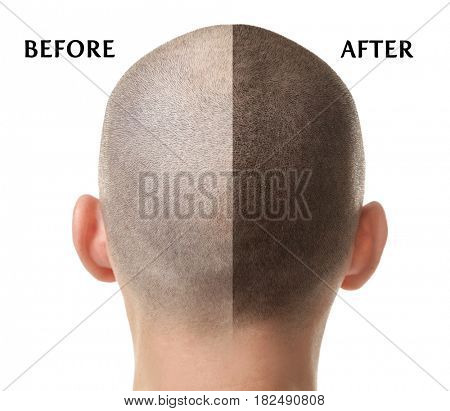 Man before and after hair loss treatment on white background stock photo