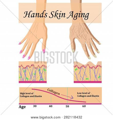 Hands skin aging, vector illustration with a chart stock photo