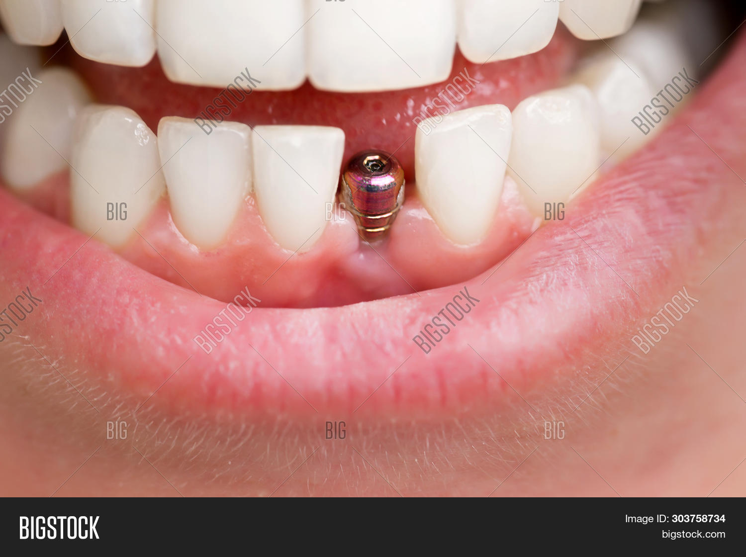 artificial,beautiful,beauty,care,ceramic,clean,clinic,closeup,crown,dental,dentist,dentistry,denture,disease,female,front,happy,health,healthy,human,implant,implantation,implantology,metal,model,mouth,odontology,oral,orthodontic,orthodontist,patient,person,professional,repair,root,smile,surgeon,teeth,tool,tooth,toothache,treatment,visit,whitening,woman,work,young