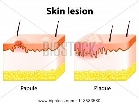 Papule and Plaque. Skin lesion. Papule is a solid elevation of skin and accumulation of material in the dermis with no visible fluid. Plaque - confluence of papules stock photo