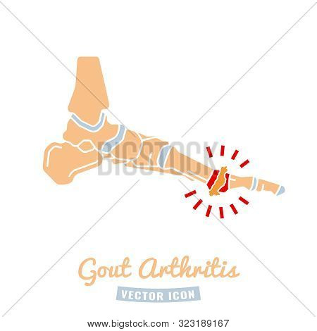 Gout arthritis icon. Joint pain in human foot sign. Editable vector illustration in beige, grey and red colors isolated on white background. Modern flat style. Graphic design stock photo