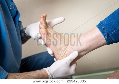 The hands of a young man doctor orthopedist conducts diagnostics, foot foot test of a woman, for the manufacture of individual, orthopedic insoles. stock photo
