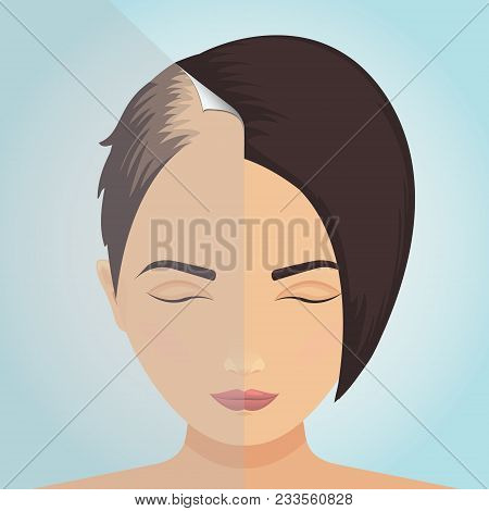 Front view of a balding woman before and after hair treatment. Divided image of the head. Two halves. Sticker revealing healthy scalp. Female alopecia. Isolated vector illustration. stock photo