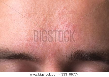 weeping eczema in the stage of exudation. Closeup of forehead area with eczema rash clinic stock photo