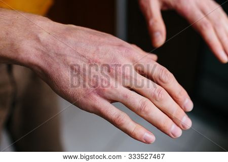 Psoriasis skin. Closeup of rash and scaling on the patients skin. The concept of chronic disease treatment. Dermatological problems. Hard, horny and cracked skin in mans hands. Dry skin. stock photo