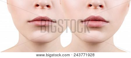Beautiful lips of young woman. Before and after lips filler injections. Fillers concept. stock photo