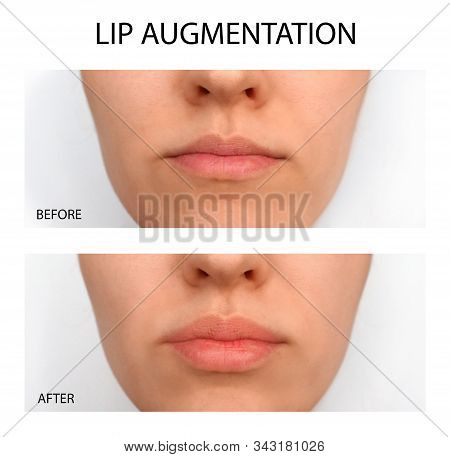Female lips before and after augmentation. Beauty plastic stock photo