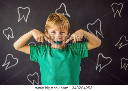 Six-year old boy shows myofunctional trainer. Helps equalize the growing teeth and correct bite, develop mouth breathing habit. Corrects the position of the tongue stock photo