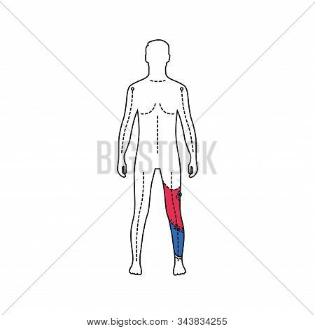 Man with artificial leg color line icon. Person who has a prosthesis instead of a real leg. Pictogram for web page, mobile app, promo. UI UX GUI design element. Editable stroke. stock photo