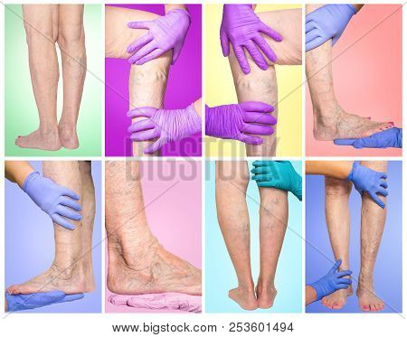 Lower limb vascular examination because suspect of venous insufficiency. The female legs on colored background. Collage. Varicose veins concept stock photo