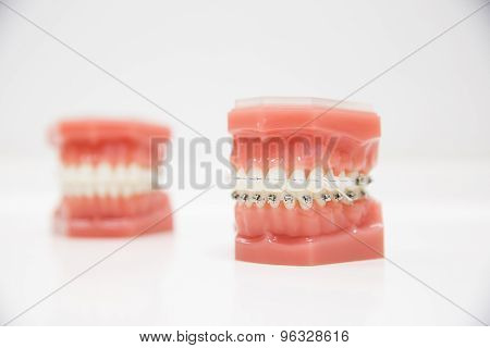 Model of human jaw with wire braces attached. Dental and orthodontic office presentation tool isolated on white background. stock photo